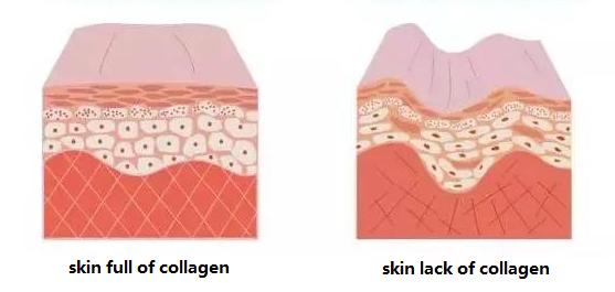 skin comparation